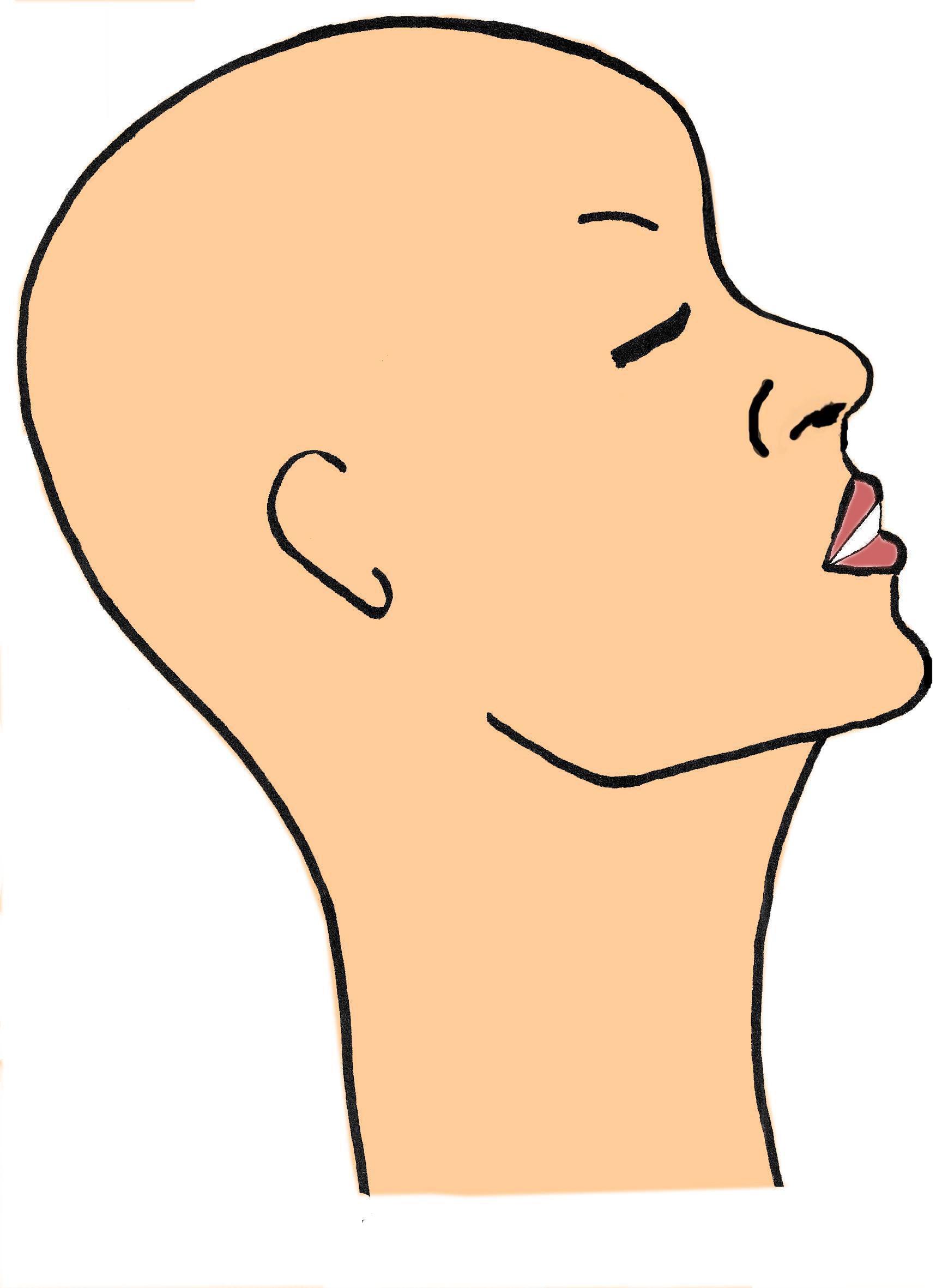 Chirurgie esthtique du visage : lostotomie du maxillaire